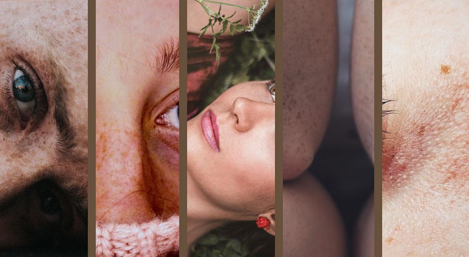 Tipos de pieles